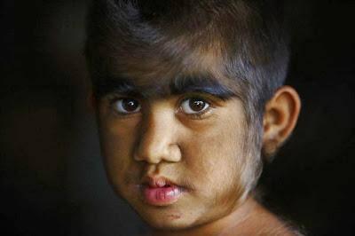 Οικογένεια «λυκανθρώπων» από το Νεπάλ μεταμορφώνεται