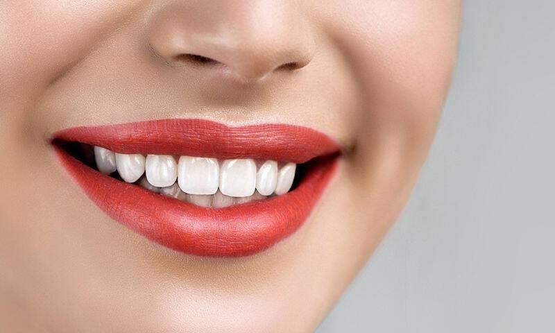 Λεύκανση Δοντιών Στο Σπίτι: 9 + 1 Πανεύκολα tips Που Θα Λατρέψεις!